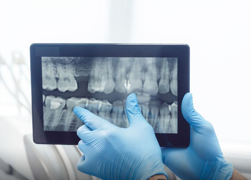 Ekstrakcja zębów